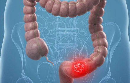 cancer-de-colon1