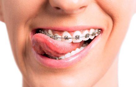 dientes-chuecos-la-solucion-es-la-ortodoncia