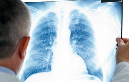 pulmon-navarra.elespanol.com__68199_68199
